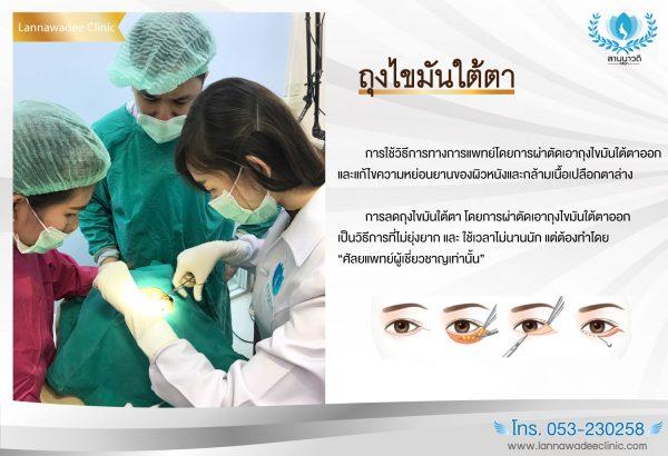 ผ่าตัดถุงใต้ตา กำจัดถุงไขมันใต้ตา โดยลานนาวดีคลินิกเชียงใหม่ โทร. 053-230258