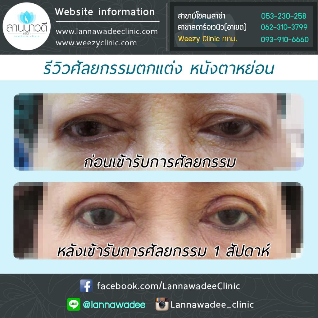 ผ่าตัดแก้หนังตาหย่อนเชียงใหม่ ศัลยกรรมตกแต่งตา